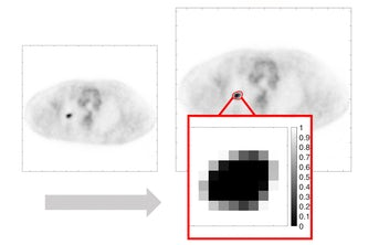 The image on the left is a PET image with tumor that is input into the Jha lab's tissue-fraction estimation approach. The image on the right is the output, with the tumor-fraction areas enhanced.