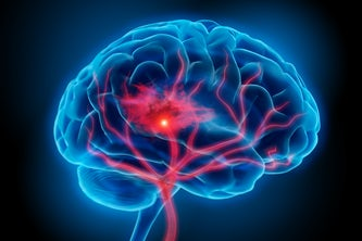 A Washington University in St. Louis team will study how the brain recovers from ischemic stroke with a $3.12 million grant from the National Institutes of Health. Credit: iStock photo