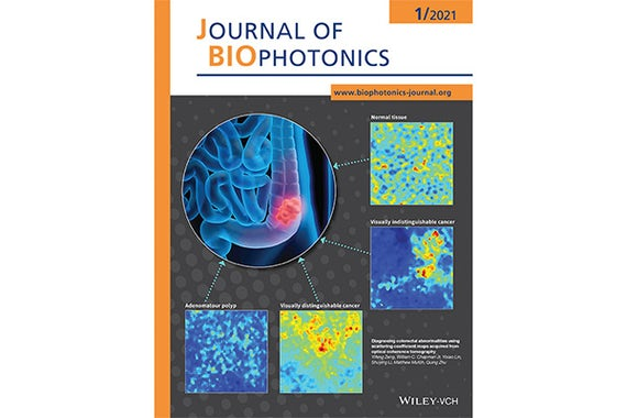 In results published in the January 2021 Journal of Biophotonics, Yifeng Zeng and a team of researchers found that OCT showed differences in the textures and patterns of normal and abnormal tissue, which are difficult to determine using traditional visual inspection.